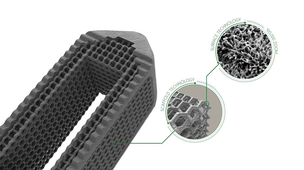 More 3D Printers for More Spinal Implants