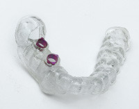 An Introduction to Dental 3D Printing