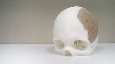 3D Printed Human Replacement Parts Approved