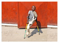 Treating Clubfoot, One Print At A Time