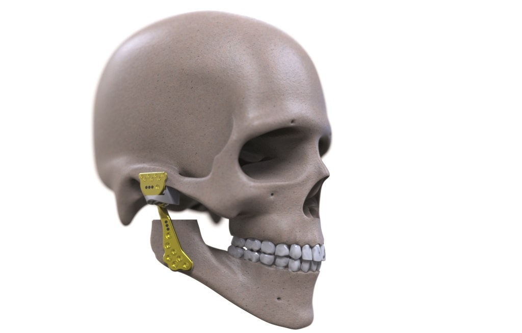 Engimplan implant [Image: Engimplan]