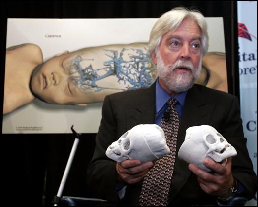 , Remembering James T. Goodrich, 3D Printing Neurosurgeon Pioneer