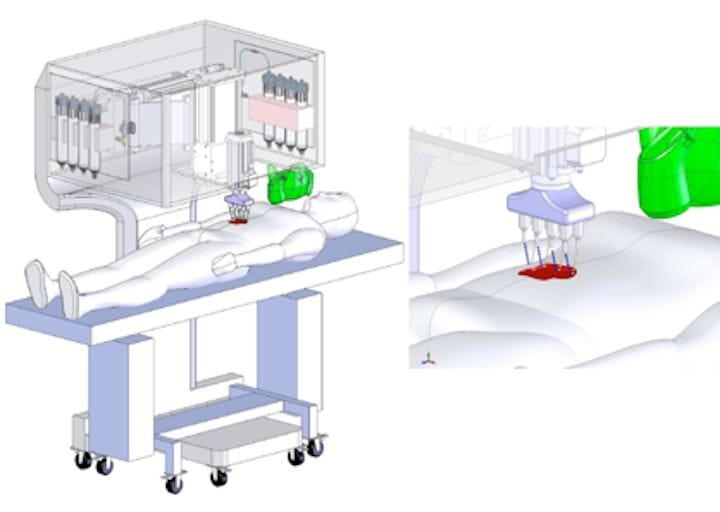 A new process for 3D bioprinting skin onto live patients [Source:  Nature]