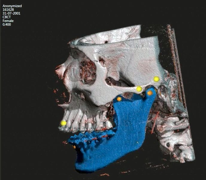 Screenshot from 3D Systems' DICOM 3D model system, D2P