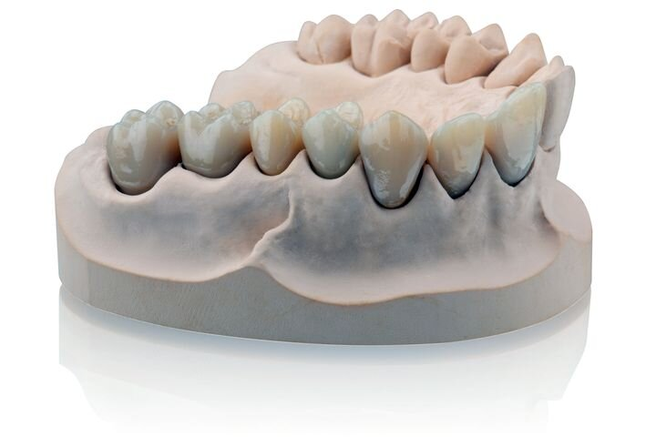3D printed dental crowns [Source: Formlabs]