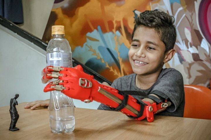 3D printed prosthetics in Colombia [Source: e-NABLE Medellín ]