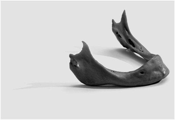 3D printed jawbone [Source: FormLabs]