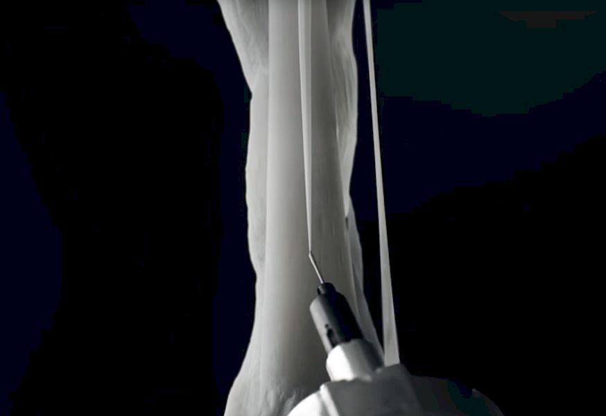 , Cartilage Filament for Bioprinting Developed