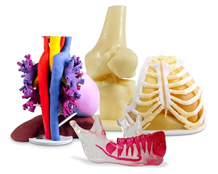 Colorful, but highly useful 3D prints of anatomical structures from 3D Systems