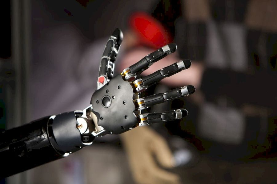 A brain-controlled 3D printed prosthetic arm ( Courtesy Wikimedia )