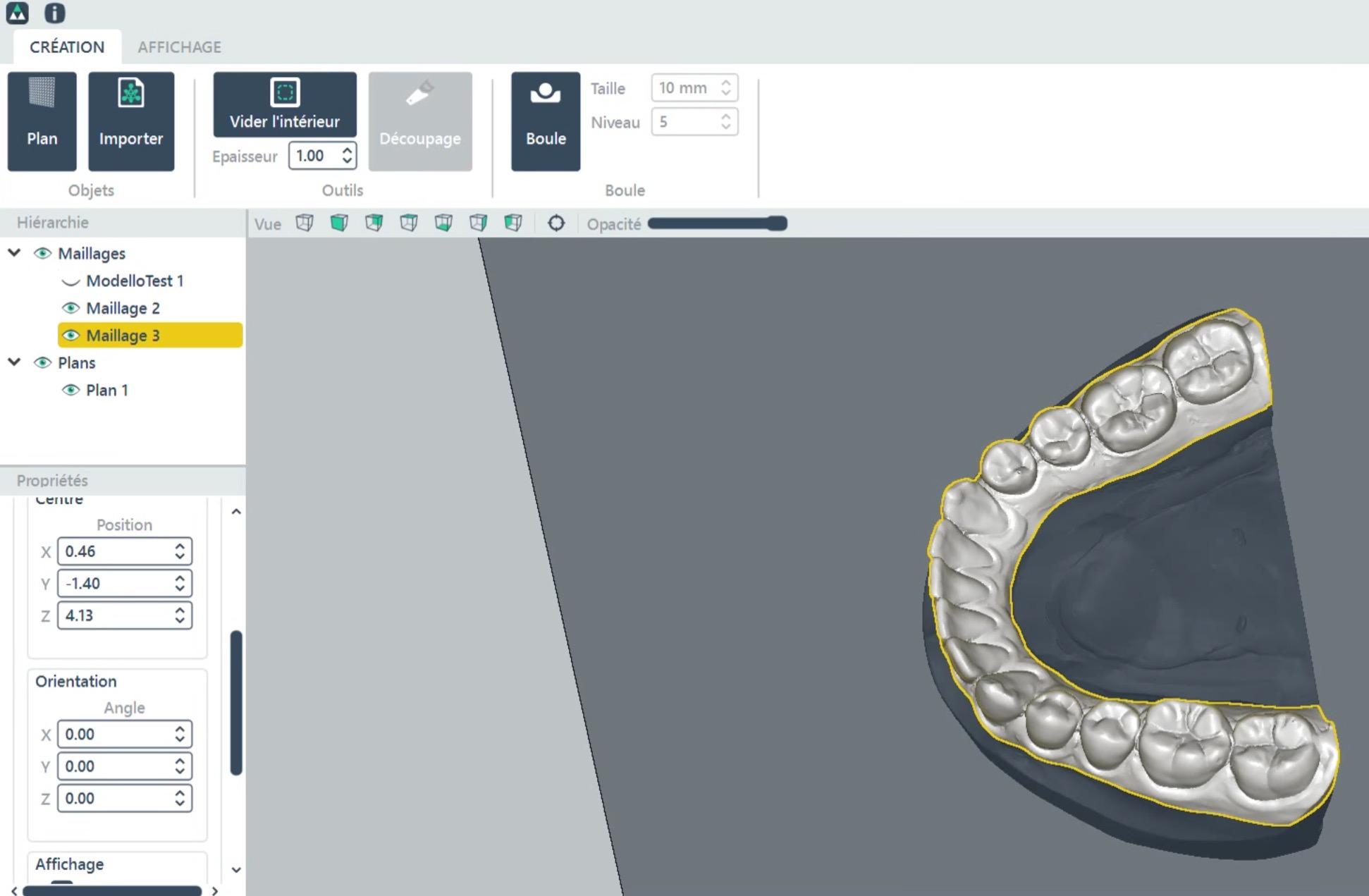 Deltaface's CORUO dental optimization software