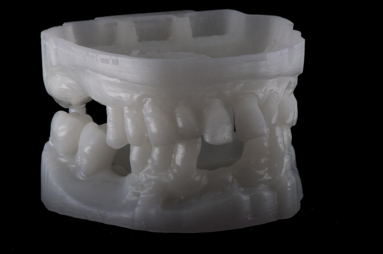 Sample dental print by Arfona's r.Pod desktop 3D printer