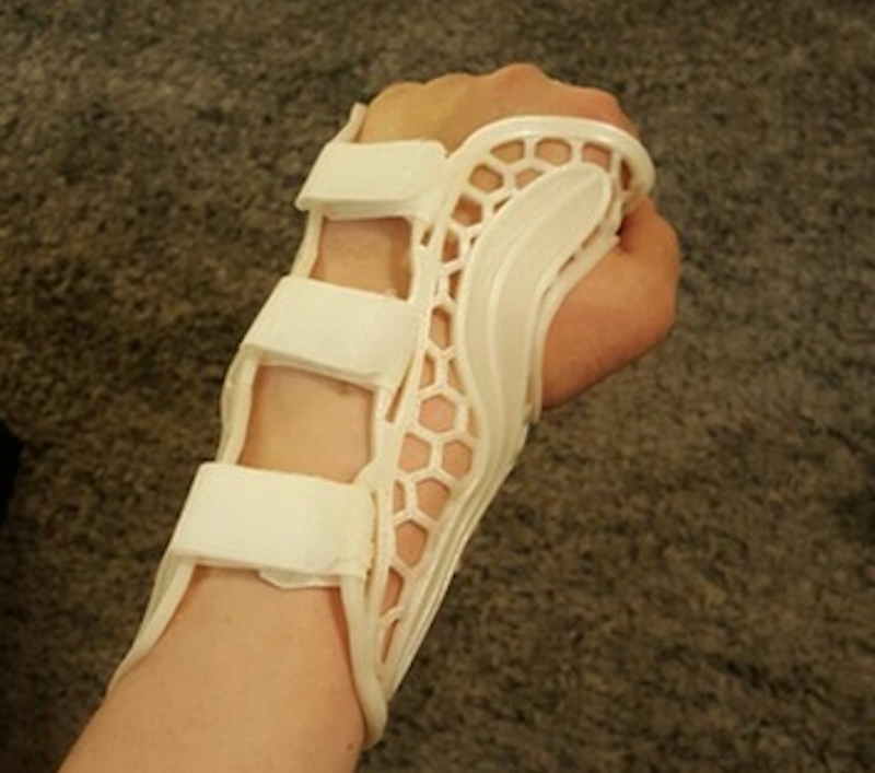 , Questions Raised Over Home-3D Printed Wrist Brace