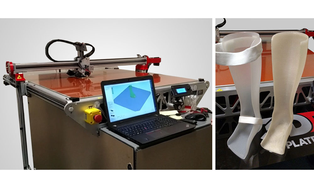 , New 3D Printing Application Developed: Ankle Foot Orthosis