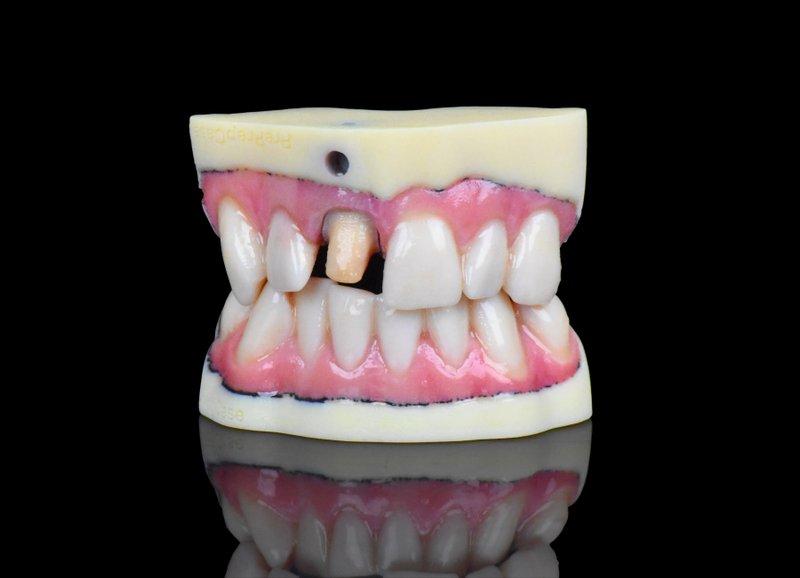 Stratasys' J720 Speeds Full-Color 3D Prints for the Dental Lab