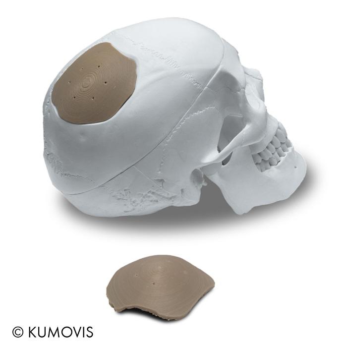 A 3D printed cranial implant [Image: Kumovis]
