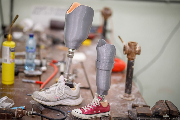 Affordable Prosthetic Care with LifeNabled