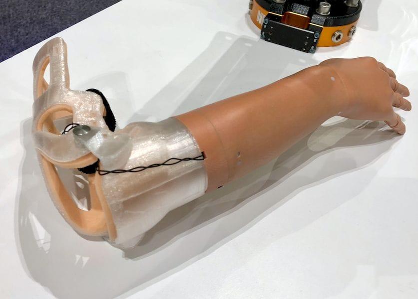 Stratasys' Prosthetic Venture