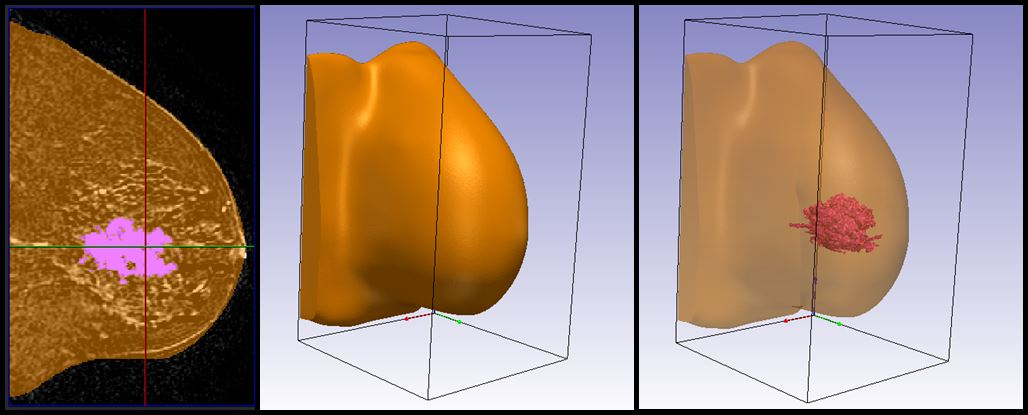 DICOM data from MRI scans were segmented in Simpleware ScanIP to generate two 3D models [Source: Wake Forest Baptist Medical Center ]