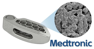Medtronic Acquires Medicrea: Implications On 3D Printing Medical Technology
