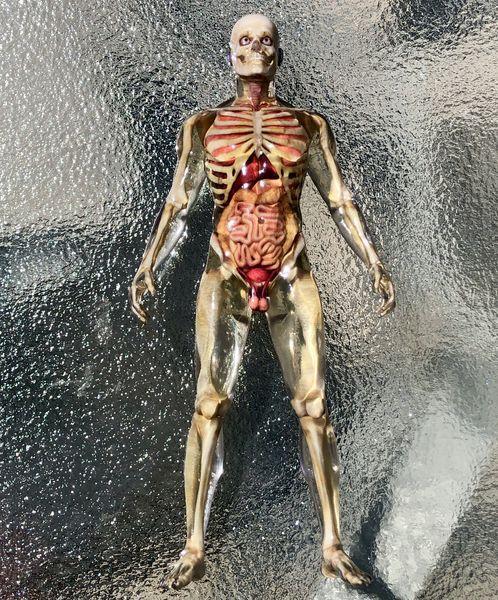 Examining Mixed Dimension's Anatomical 3D Prints