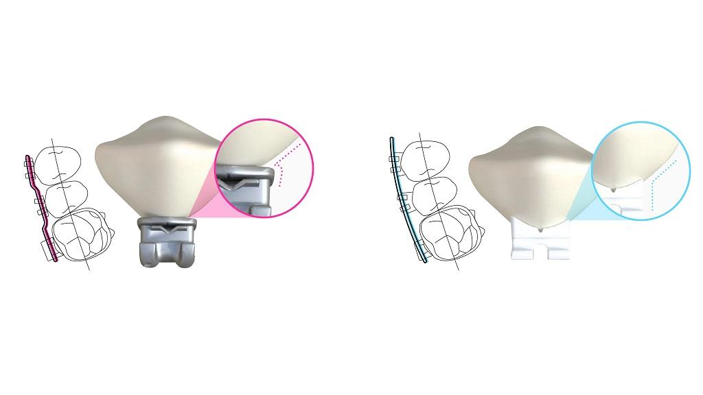 LightForce Closes $14M Funding For 3D Printed Braces Brackets