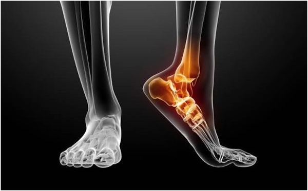 3D Printing Aiding In Ankle Surgery