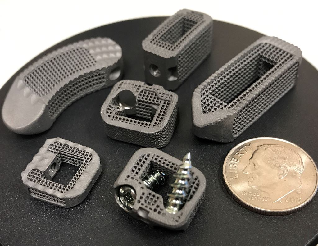 3D Printing Aiding Spinal Surgeries