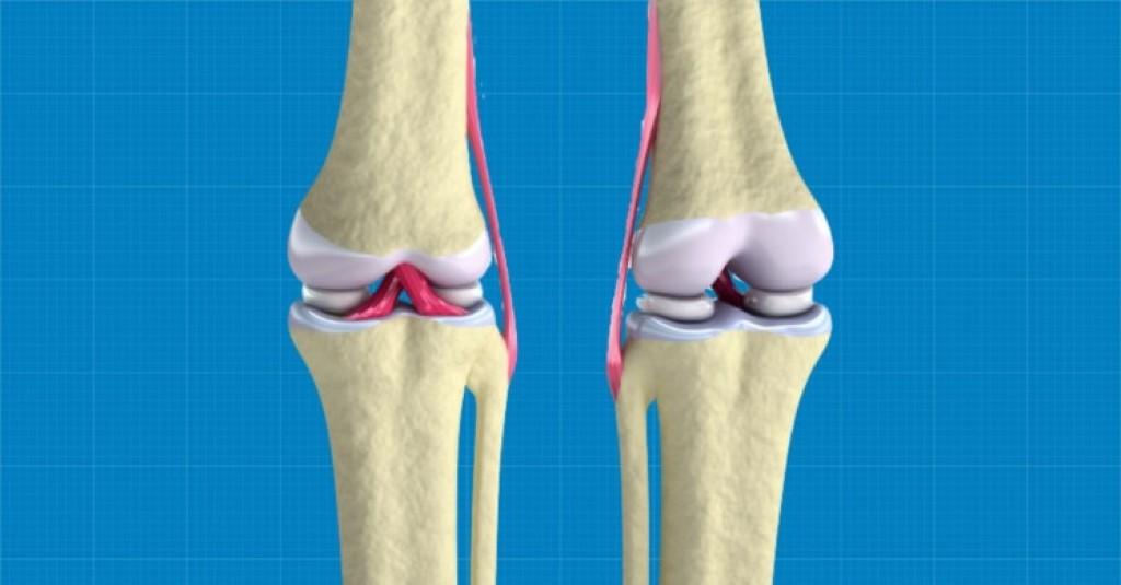 The Wake Forest Institute Bioprints Regenerative Knee Cartilege Tissue